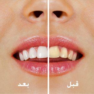علاج وتجميل الأسنان