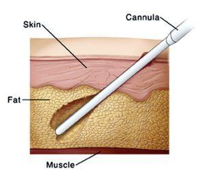 قسم الجراحة التجميلية