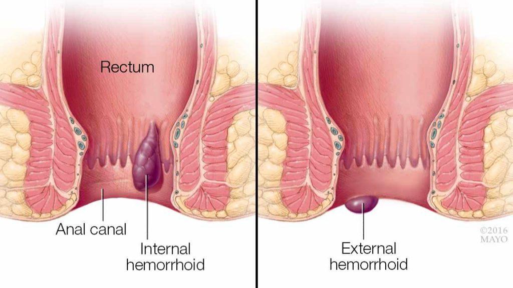 البواسير Hemorrhoids
