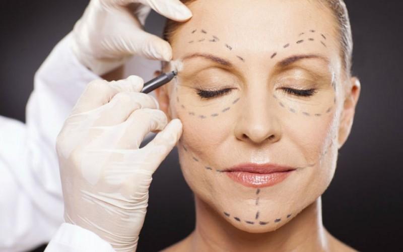 أكثر الأسئلة الشائعة عن عملية شد الوجه | الآن يمكنكم أن تتخلصوا من التجاعيد ودهون الوجه بسهولة