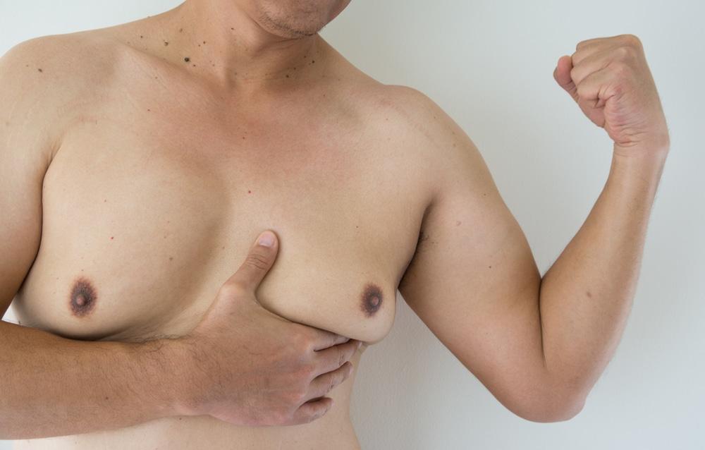 التثدي لدى الرجال وطرق علاجة