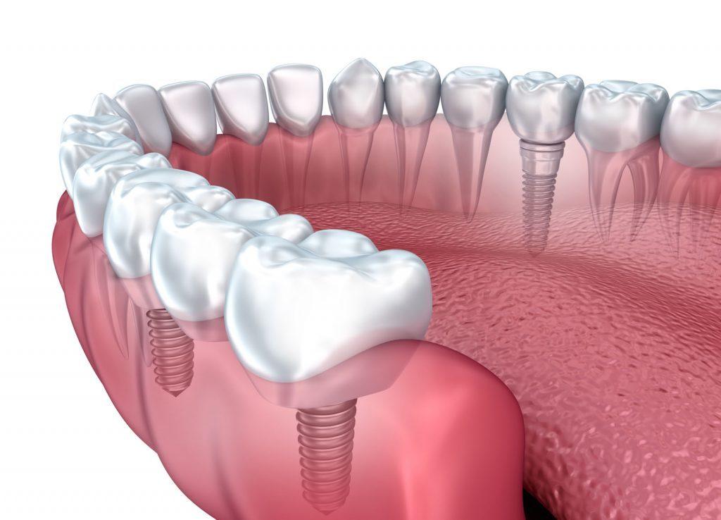 عملية زراعة الأسنان باستخدام التقنيات الحديثة – صحة الاسنان