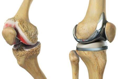 تبديل مفصل الركبة في تركيا