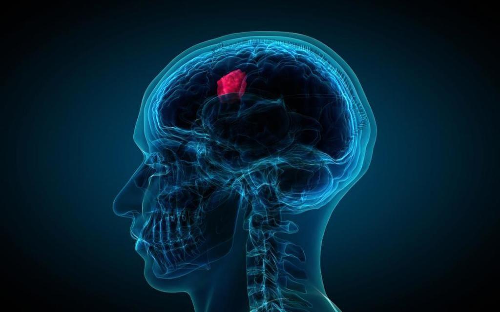 أعراض اورام الدماغ والأعصاب