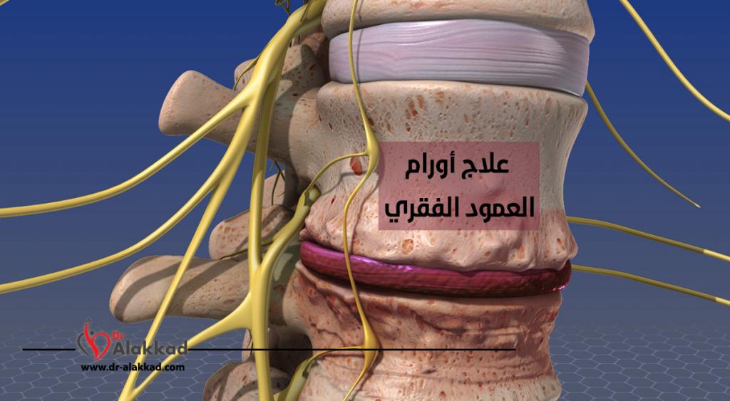 علاج أورام العمود الفقري