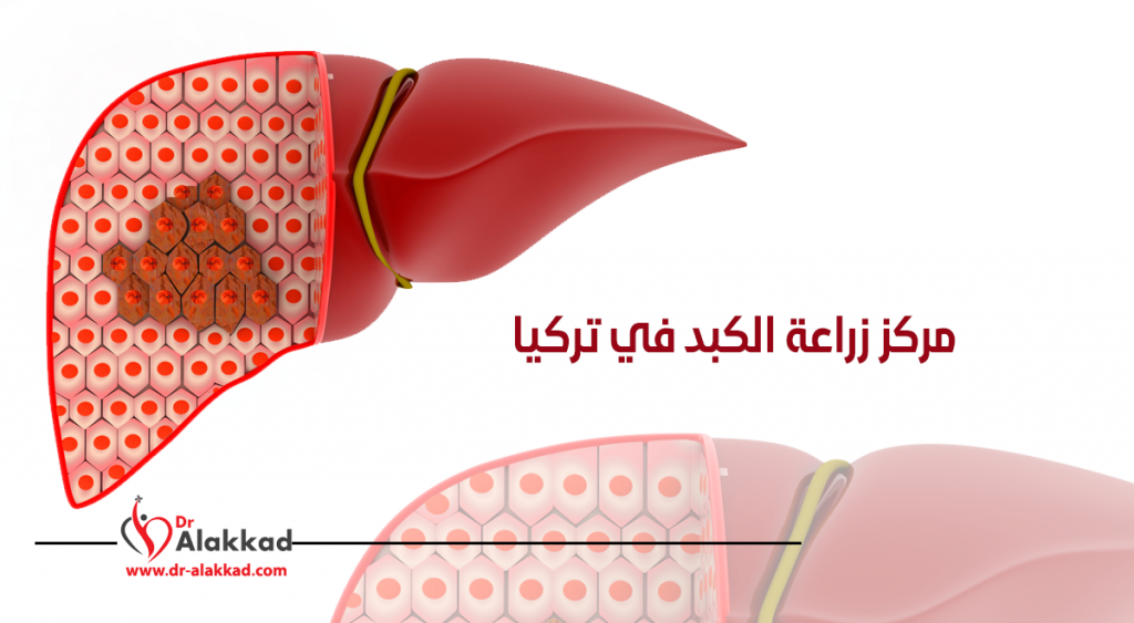 مركز زراعة الكبد في تركيا