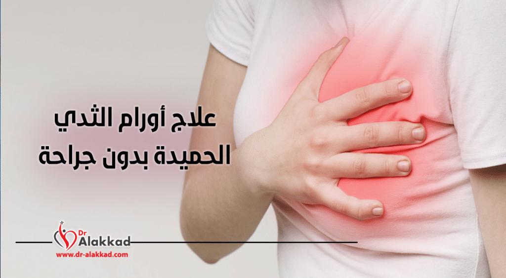 علاج أورام الثدي الحميدة بدون جراحة!