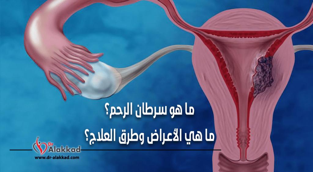 ما هو سرطان الرحم ؟ ما هي الأعراض وطرق العلاج ؟