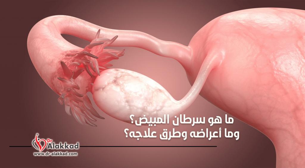 ما هو سرطان المبيض وما أعراضه وطرق علاجه؟